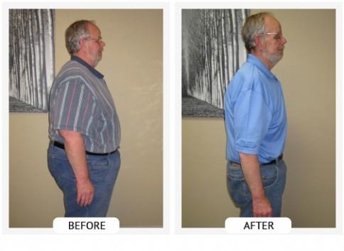 Chiropractic Norwood MA ChiroThin Program Success Story